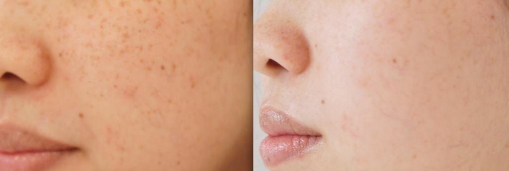 Behandlung von Pigmentflecken mit einem Laser